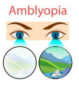 تنبلی چشم در کودکان-سایت خبری ازدیدما