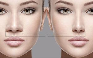جراحی بینی-سایت خبری ازدیدما