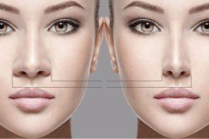 جراحی بینی -سایت خبری ازدیدما
