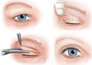 جراحی پلک -سایت خبری ازدیدما