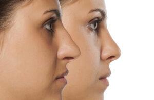 تفاوت بینی گوشتی و استخوانی -سایت خبری ازدیدما