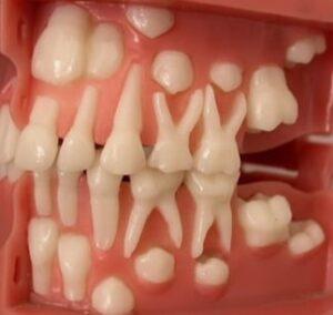 دندان -سایت خبری ازدیدما