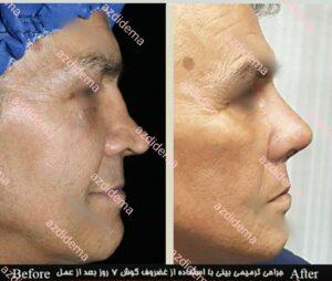 جراحی بینی ترمیمی -سایت خبری ازدیدما