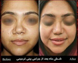 جراحی ترمیمی بینی-سایت خبری ازدیدما
