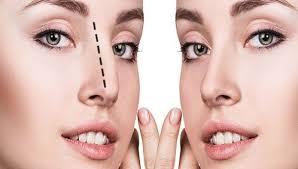 جراحی بینی استخوانی - سایت خبری ازدیدما