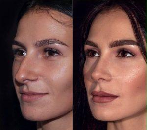 جراحی زیبایی بینی - سایت خبری ازدیدما